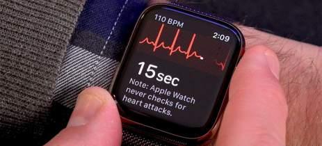 Apple Watch supera aparelho hospitalar ao detectar doença em senhora de 80 anos