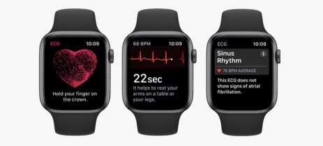Apple é processada por causa do sensor do Apple Watch usado para detectar fibrilação atrial