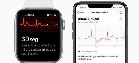 Apple Brasil confirma chegada do ECG e batidas irregulares no próximo update