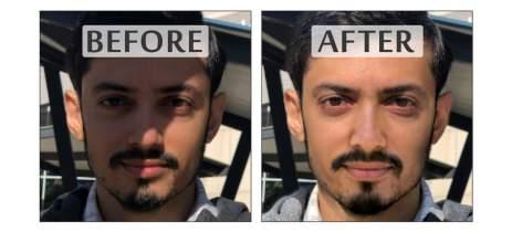 Pesquisadores criam IA capaz de remover sombras de imagens