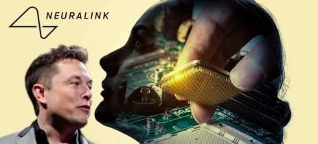 Neuralink pode mostrar primeiro humano com um chip no cérebro em 28 de agosto