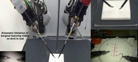 Veja o robô que aprendeu a suturar apenas assistindo vídeos de cirurgias