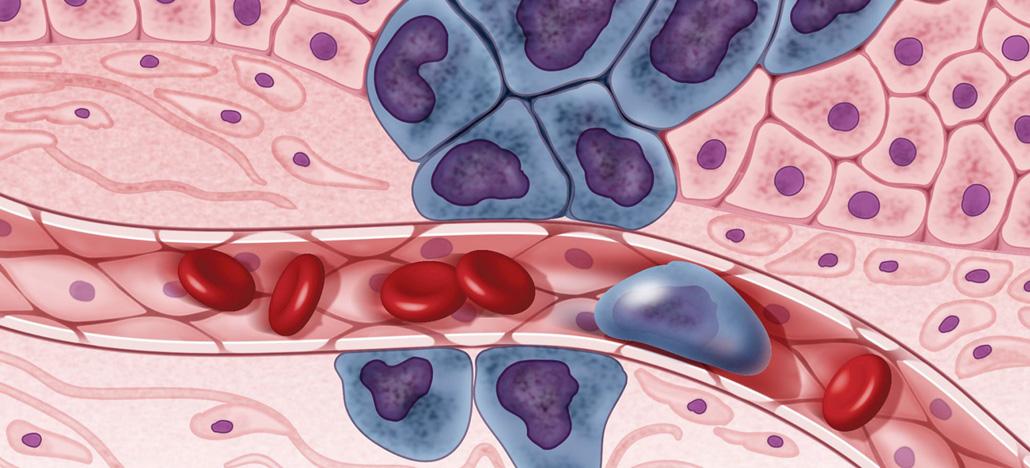 Pesquisa mostra que microgravidade pode neutralizar células cancerosas