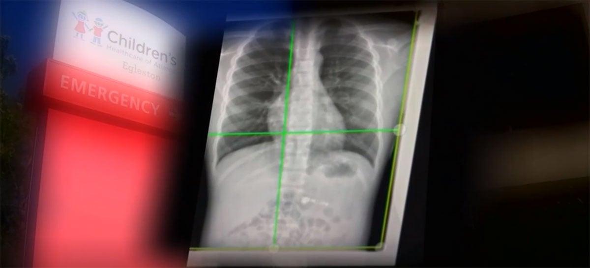 Garoto de 7 anos é hospitalizado após comer Apple AirPod