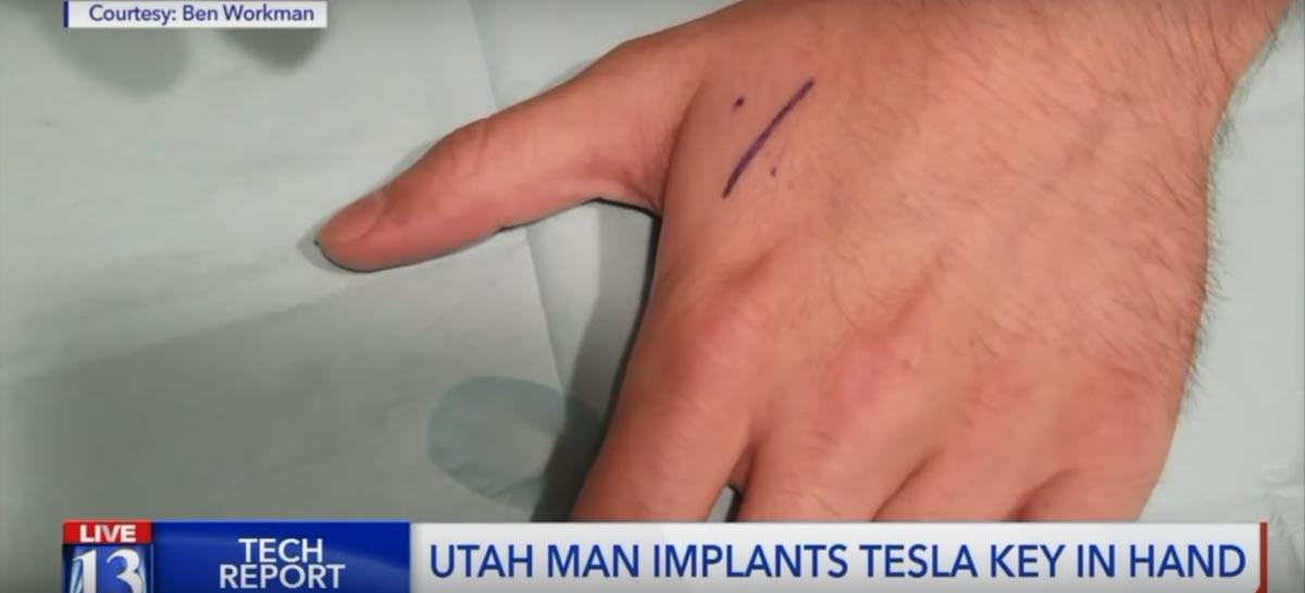 Homem implanta chave do Tesla Model 3 na mão